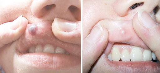 BA-lip-treatment